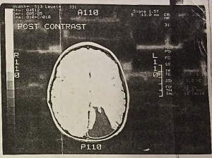 CT of the Brain image