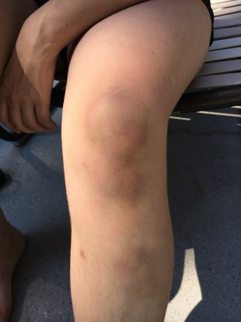 a very bruised knee and leg