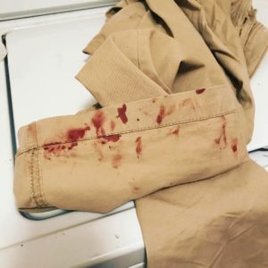 Bloody Clothes from Skin Picking Disorder